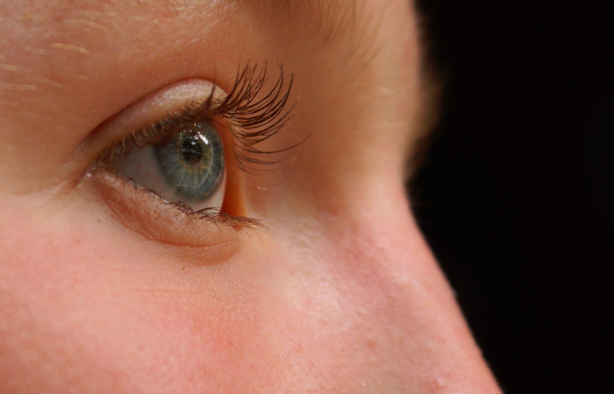 Ячмень на глазу у ребенка: как лечить в домашних условиях 16